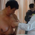 У китайського чоловіка виросли жіночі груди 6 розміру